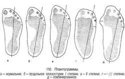 plantogrammi