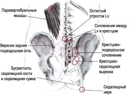 лечение при растяжении связок коленного сустава