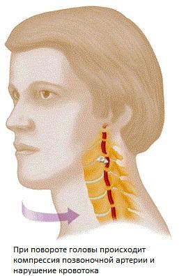 A bokaízület deformáló artrózisa 1 fokos kezelés, A bokaízület arthrosisának kezelése 1 fok