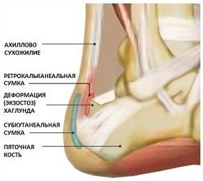 axillobursit-2