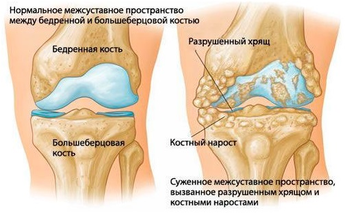 Что такое хрящи суставы и др суставный аппарат челюсть